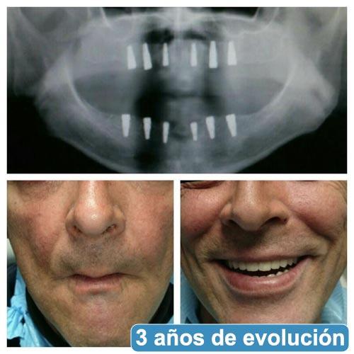 Caso Clínico de evolución de paciente clínica dental Talavera 1