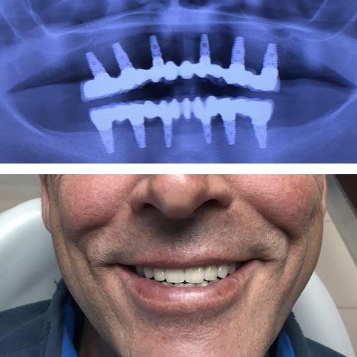 Caso Clínico de evolución de paciente clínica dental Talavera 2