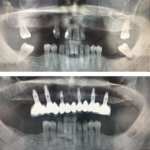 Caso clínico Tratamiento Dentista Talavera 1