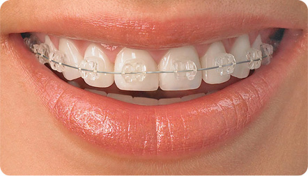 tratamiento ortodoncia endodoncia talavera de la reina