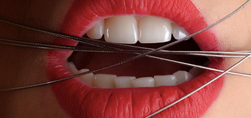 dolor de encias cuando ir al dentista
