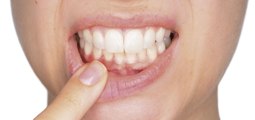 que es la gingivitis